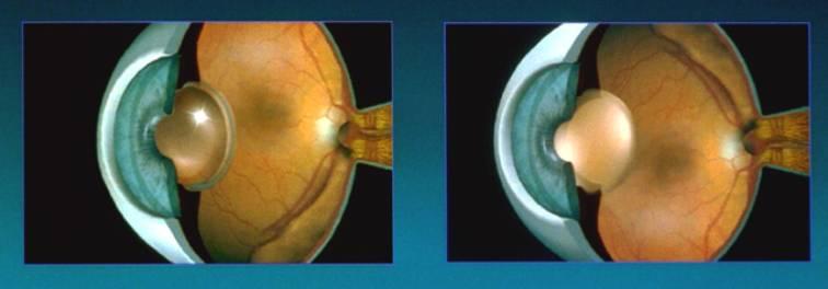 Evolution de l'oeil