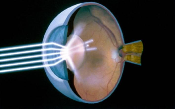 Coupe d'un oeil