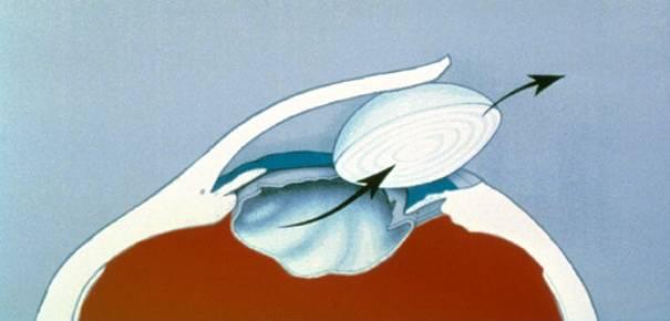 Extraction de la cataracte