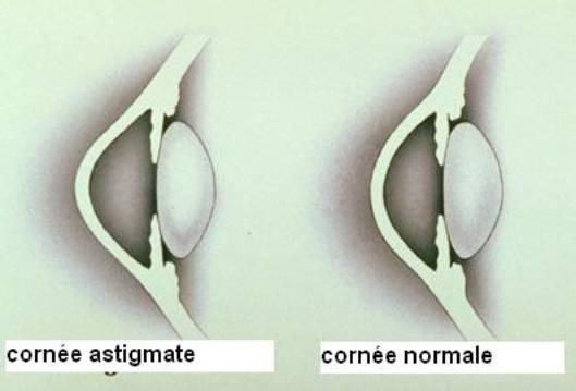 Correction de l'astigmatie