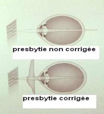 Correction de la presbytie